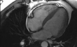 Beeldvorming van myocarditis middels cardiale MRI