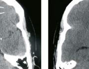 Diagnostiek bij patiënten met verdenking op een aneurysmatische subarachnoïdale bloeding
