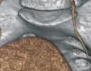 Ureterdivertikel als valkuil bij een postoperatieve patiënt