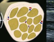 Zenuwechografie: een handvat bij diagnostiek van mono- en polyneuropathie