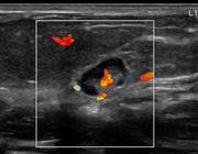 ACR BI-RADS echografie van de mamma