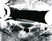 Metaalartefactreductietechnieken in musculoskeletale CT-beeldvorming
