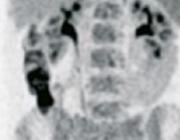 Beeldvorming bij mediastinitis na sternotomie