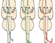 Beeldvorming van myelumlaesies