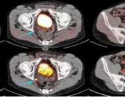 Detecteerbaar PSA ondanks radicale prostatectomie