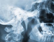 Dienstlengte in de radiologie