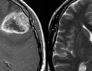 Aankleuring na behandeling van een glioblastoom: tumorrecidief of therapie-effect?
