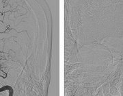 Beeldvorming bij het acute herseninfarct in het tijdperk van intra-arteriële trombectomie