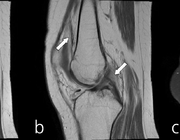 MRI in de zorg voor jeugdreumapatiënten