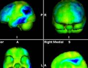 FDG-PET van de hersenen en dementie