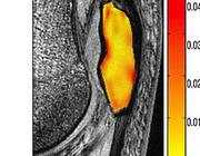Patellofemorale pijn en structurele MRI-afwijkingen