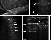 FAST, wat de radioloog kan leren