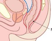 MRI rectum en het rectumcarcinoom: hoe doe ik dat?