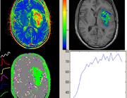 DCE-MRI: overzicht, methoden en toepassingen