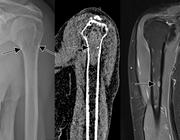 Ontwikkeling van diagnostische beeldvorming van multipel myeloom