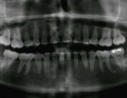 Beeldvorming bij temporomandibulaire disfuncties