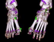 (Dual energy) CT en MRI bij kristal-arthropathieën