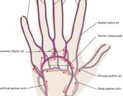 Intra-arteriële toegang in de interventieradiologie