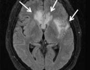 Beeldvorming van het centraal zenuwstelsel bij aids