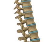 Spinaal dysrafisme