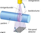 Rol van CBCT in de maxillofaciale en de algemene radiologie